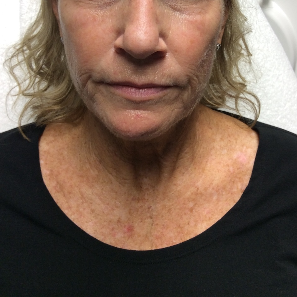 Pure Luxe Patient before Voluma and Juvéderm
