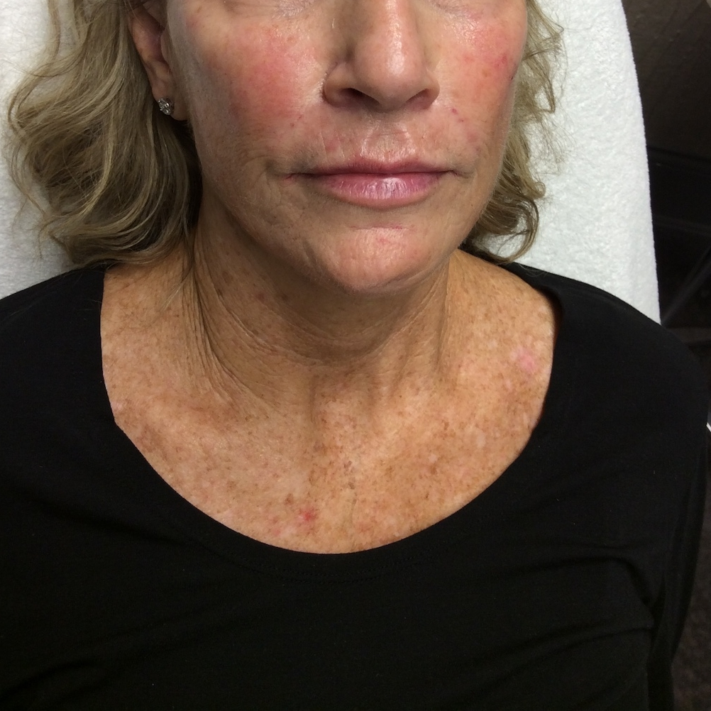 Pure Luxe Patient after Voluma and Juvéderm