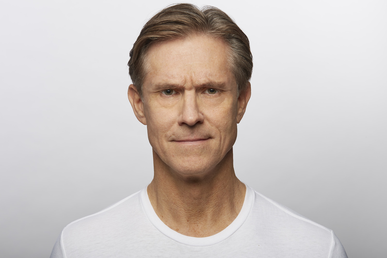 Before Dysport (Jim, 58)