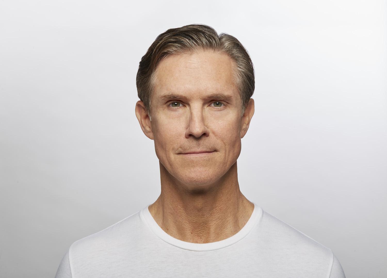 After Dysport (Jim, 58)