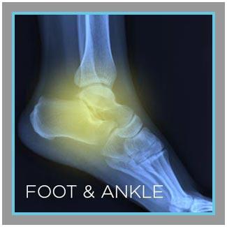 foot-ankle.jpg