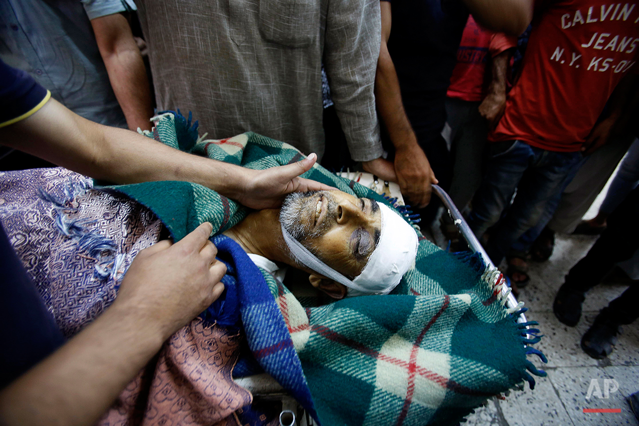 The body of an elderly Kashmiri civilian Ghulam Mohammad Mir, who succumbed to injury allegedly attained during a protest last week, is carried on a stretcher outside a hospital in Srinagar, India, Wednesday, July 20, 2016. The largest street protests in recent years in the disputed region, that left dozens of people dead and hundreds injured erupted more than a week ago after Indian troops killed a popular young rebel leader. (AP Photo/Mukhtar Khan)