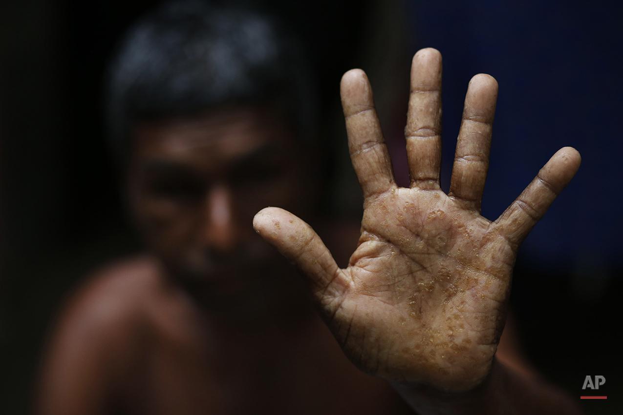 APTOPIX Bangladesh Arsenic