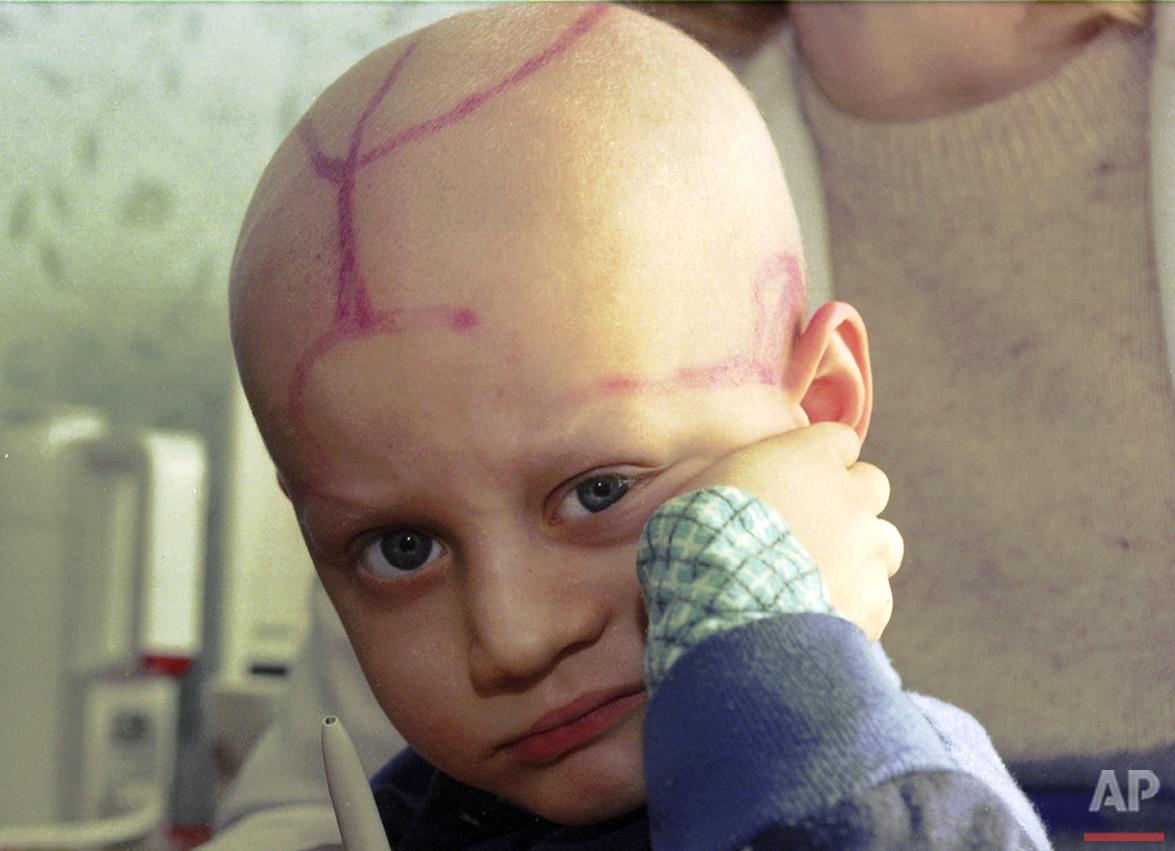 In this photo taken on Wednesday, March 19, 1996, five-year-old Alek Zhloba, who suffers from leukemia, is held by his doctor in the children's cancer ward of the Gomel Regional Hospital, in Gomel, Belarus. There are tracks from medical procedures on his head. Much of the nuclear fallout from the 1986 Chernobyl disaster fell on Belarus. Thirty years ago, the Chernobyl Nuclear Power Plant exploded in Ukraine, spreading radioactive material across much of the Northern Hemisphere. (AP Photo/Efrem Lukatsky)