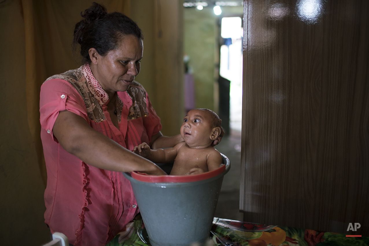 In the Jan. 30, 2016 photo, Solange Ferreira bathes her son Jose Wesley in a bucket at their house in Bonito, Pernambuco state, Brazil, Saturday. Jose Wesley who cries incessantly only calms down when he is placed in the bucket of water. A trick his mother learned from a nurse at a hospital. (AP Photo/Felipe Dana)