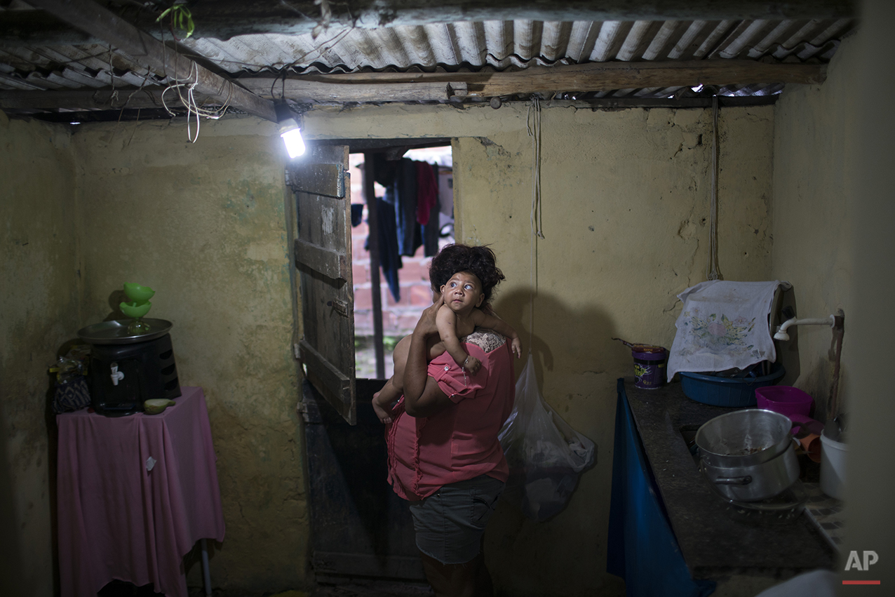 In this Jan. 30, 2016 photo, Solange Ferreira carries her son Jose Wesley at their house in Bonito, Pernambuco state, Brazil. Jose suffers from microcephaly, or an abnormally small head that is a sign of severe disabilities and a truncated life-expectancy. Brazil's health officials say they're convinced the jump in the number of babies born with microcephaly is linked to a sudden outbreak of the Zika virus. (AP Photo/Felipe Dana)