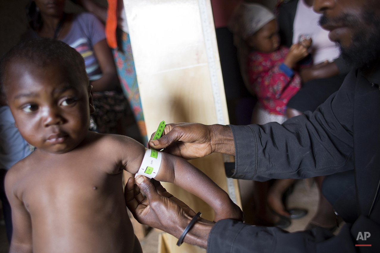 "In this Feb. 15, 2016 photo, community health volunteer Sylvio Fils-Aime examines a child for signs of malnutrition, in Oriani, Haiti. Many Haitians routinely go to bed hungry. But the impact of a yearlong drought is so severe that Haiti is facing ""unprecedented food insecurity,"" according to the U.N. Office for the Coordination of Humanitarian Affairs. (AP Photo/Dieu Nalio Chery)"
