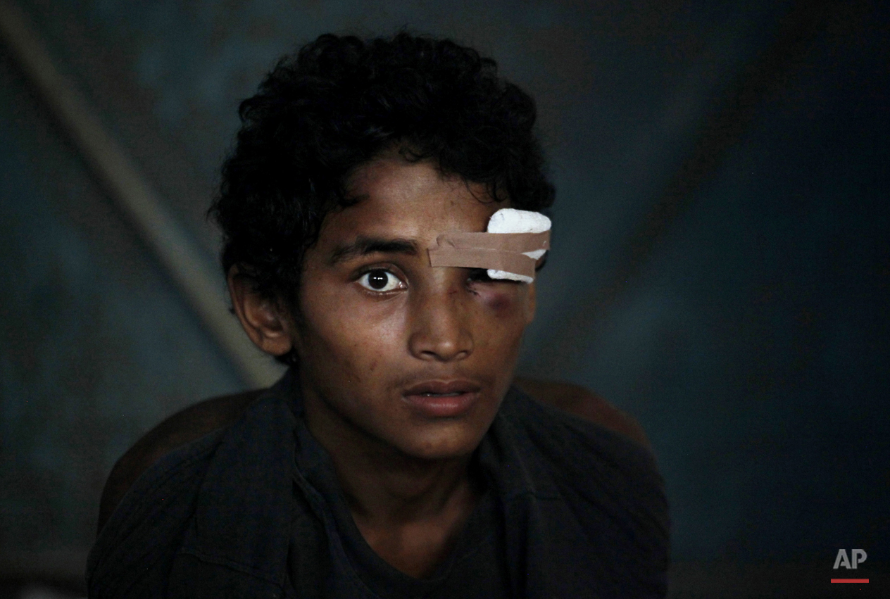 In this Friday, May 15, 2015, photo, a newly arrived ethnic Rohingya youth, who said he was injured in the eye during a brawl on the boat, sits inside a temporary shelter at Kuala Langsa Port in Langsa, Aceh province, Indonesia. More than 2,000 desperate Rohingya refugees have landed on the shores of Indonesia's Aceh province. (AP Photo/Binsar Bakkara)