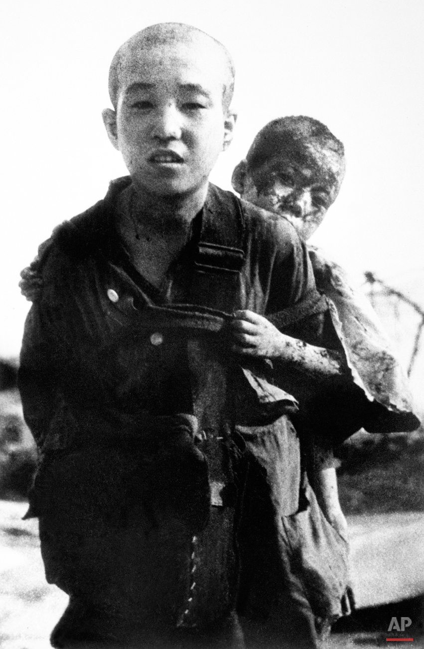An unidentified young boy carries his burned brother on his back Aug. 10, 1945 in Nagasaki, Japan. This photographs was not released to the public by the Japanese military but was disseminated to the world press by the United Nations after the war. (AP Photo/United Nations, Yosuke Yamahata)