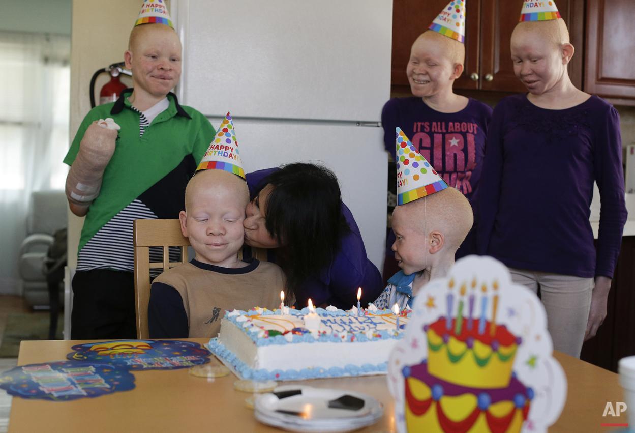 Albino Children: Receiving Prosthetics