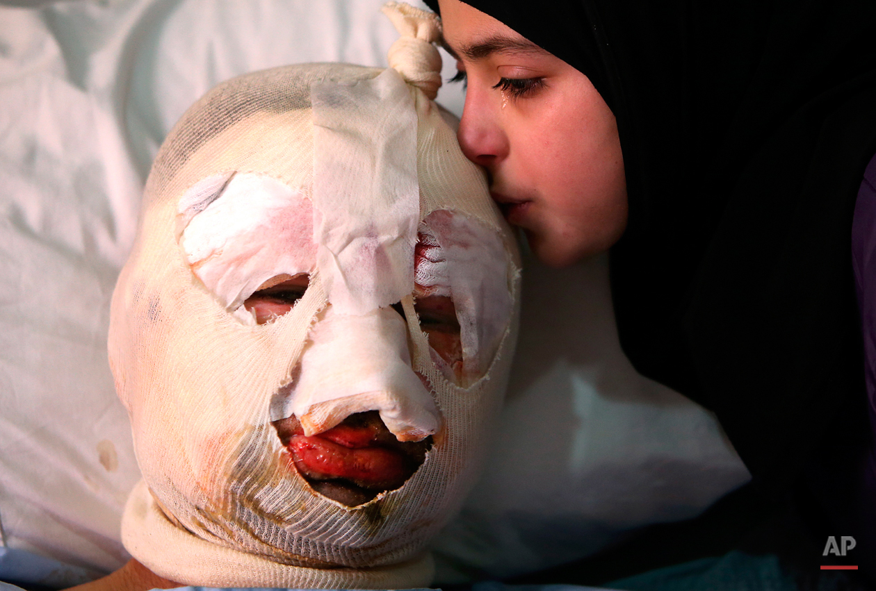 Fatima, 13, weeps as she kisses her injured father, Ahmad al-Messmar, 40, who was wounded when a deadly car bomb blew up Saturday evening near a gas station, in the predominately Shiite town of Hermel, about 10 miles (16 kilometers) from the Syrian border in northeast Lebanon, Sunday, Feb. 2, 2014. (AP Photo/Hussein Malla)