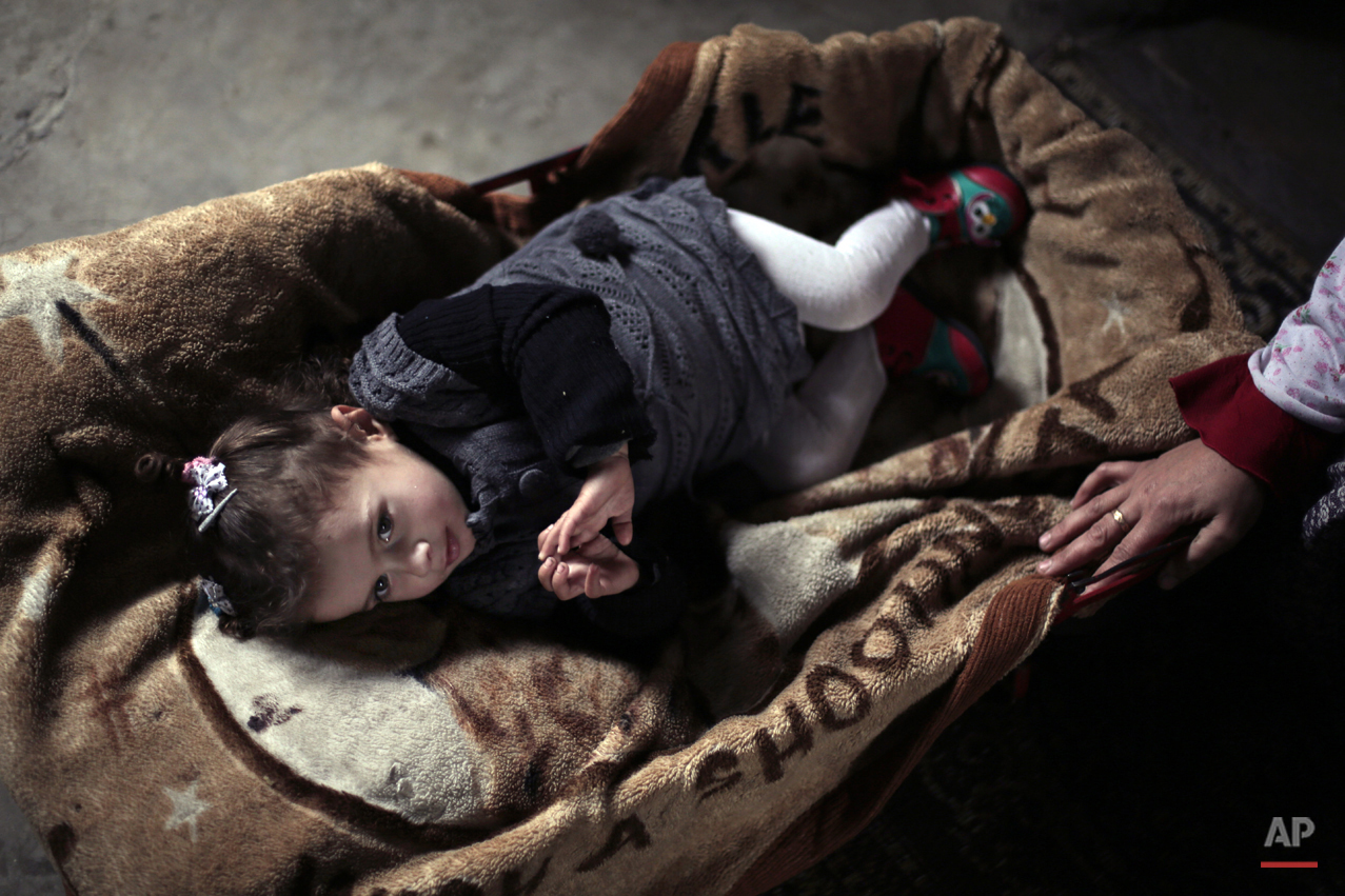 APTOPIX Mideast Gaza Wounded Girl Photo Essay