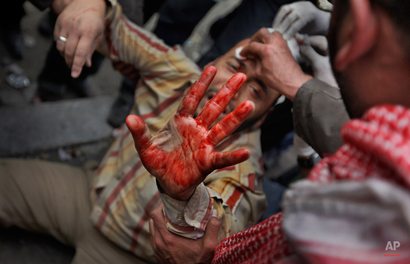 A wounded anti-government protester holds up his bloodied hand as he is carried by others back from clashes with pro-government supporters near the Egyptian Museum in downtown Cairo, Egypt, Thursday, Feb. 3, 2011. Anti-government protesters and regime supporters clashed in a second day of rock-throwing battles, while gangs of thugs supporting Egyptian President Hosni Mubarak attacked reporters, foreigners and rights workers as the army rounded up foreign journalists and new looting and arson were reported. (AP Photo/Ben Curtis)