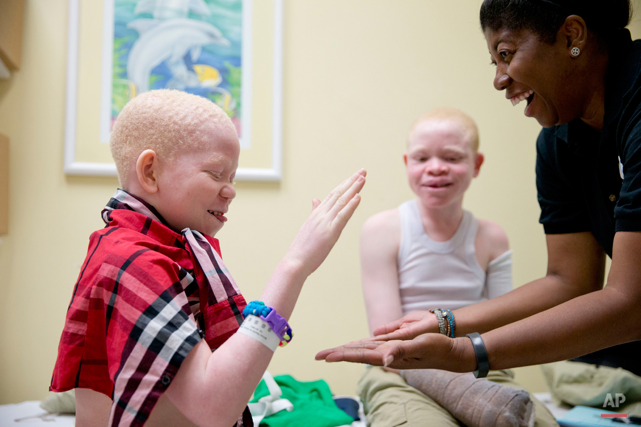 Monica Watson, right, with the Global Medical Relief Fund, plays with Mwigulu Magesa, 12, left, and Emmanuel Rutema, 13, during a fitting for prosthetic limbs at the Shriners Hospital for Children in Philadelphia on Thursday, July 23, 2015. Witch doctors often lead brutal attacks in Tanzania to use albino body parts in potions they claim bring riches. (AP Photo/Matt Rourke)