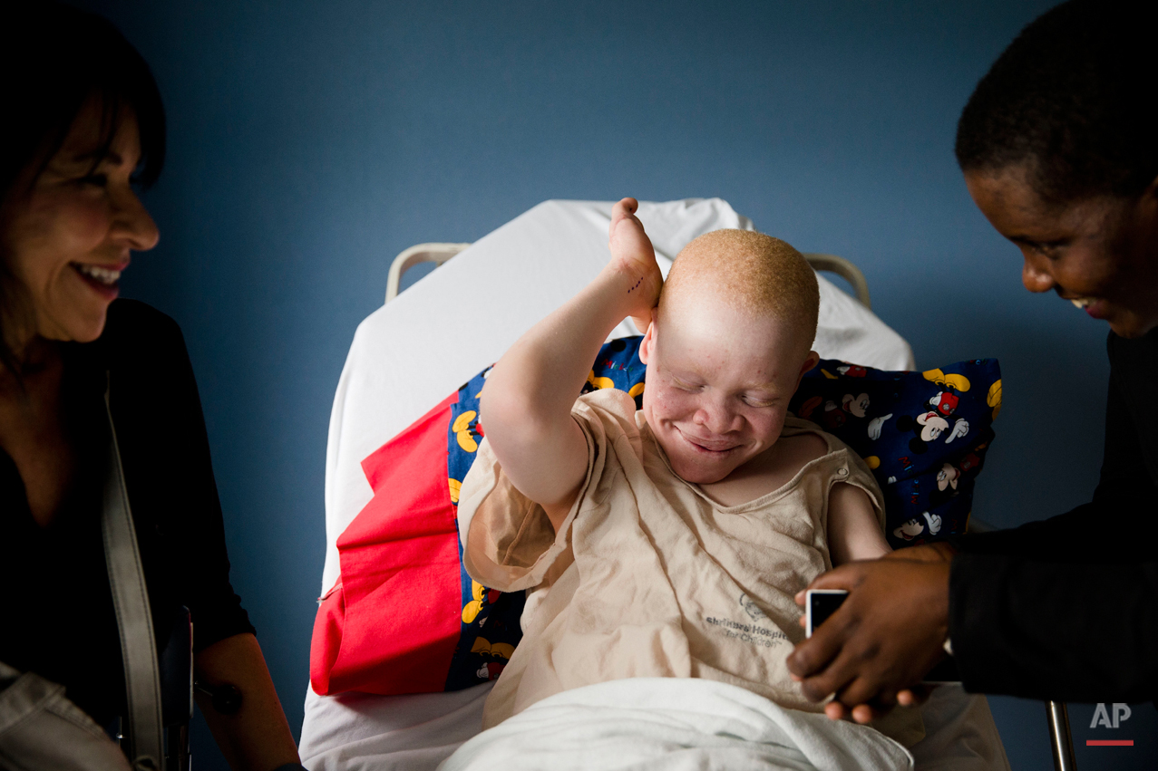 Emmanuel Rutema, 13, of Tanzania laughs with Elissa Montanti, left, founder and director of the Global Medical Relief Fund, and interpreter Ester Rwela ahead of his surgery at the Shriners Hospital for Children in Philadelphia on Tuesday, June 30, 2015. Rutema and four other children also with albinism are in the U.S. to receive free surgery and prostheses at the hospital. (AP Photo/Matt Rourke)