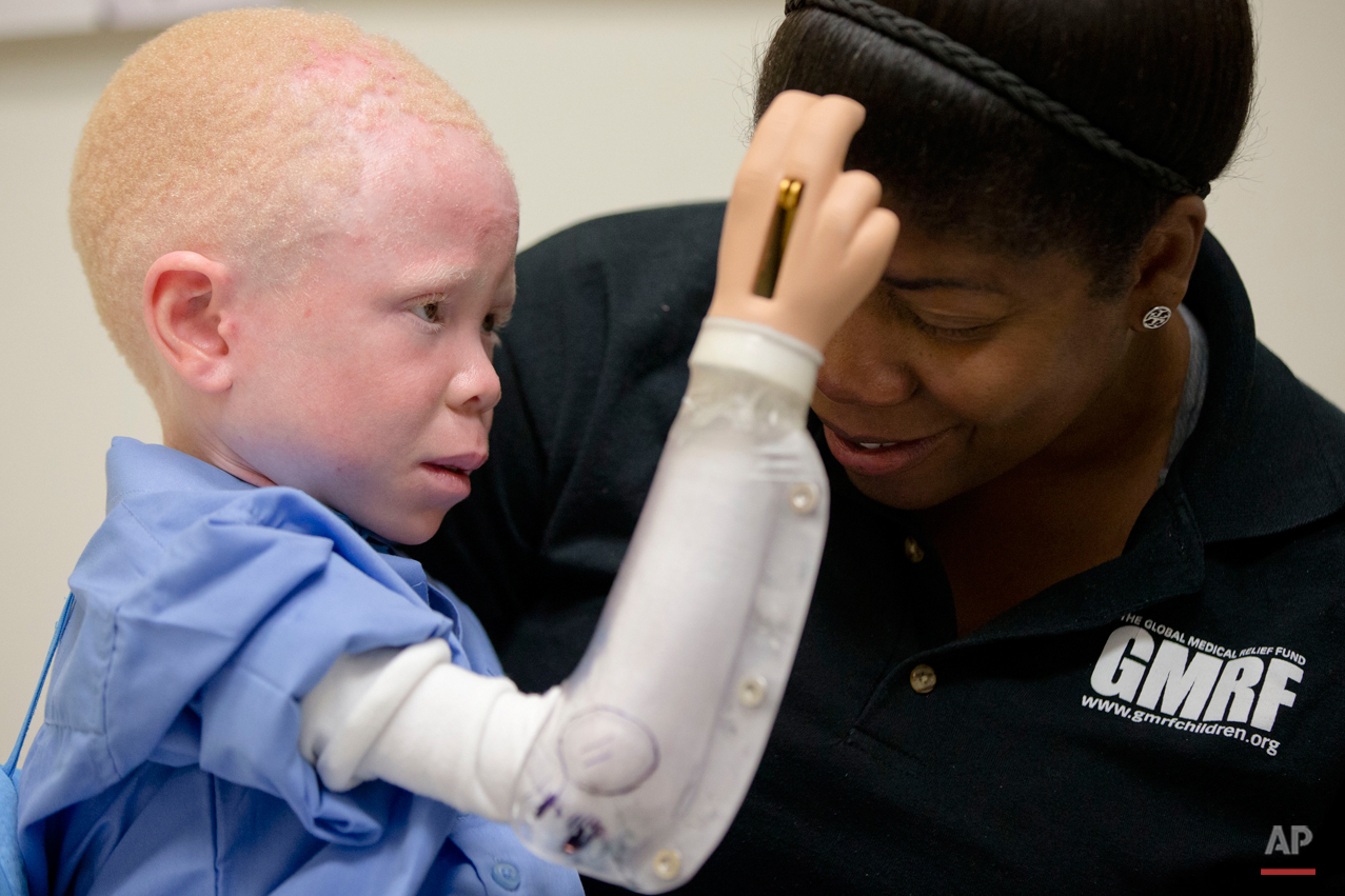 Baraka Lusambo, 5, of Tanzania reaches to touch Monica Watson, with the Global Medical Relief Fund, during a fitting for a prosthetic limb at the Shriners Hospital for Children in Philadelphia on Thursday, July 23, 2015. Witch doctors in Tanzania often lead brutal attacks to use albino body parts in potions they claim bring riches. (AP Photo/Matt Rourke)