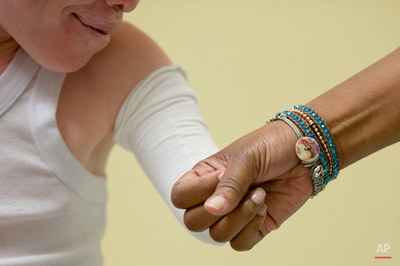 Monica Watson with Global Medical Relief Fund and Emmanuel Rutema, 13 of Tanzania touch during a fitting for prosthetic limbs Thursday, July 23, 2015, at Shriners Hospital for Children in Philadelphia. Rutema and four other children also with the hereditary condition of albinism are in the U.S. to receive free surgery and prostheses at the hospital. The children were attacked and dismembered in the belief that their body parts will bring wealth. (AP Photo/Matt Rourke)