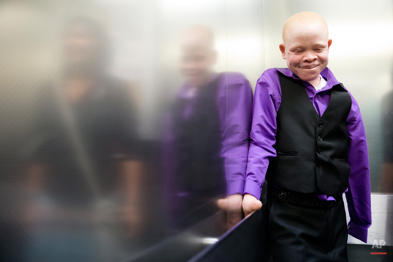 Emmanuel Rutema, 13, of Tanzania rides an elevator ahead of his surgery Tuesday, June 30, 2015, at Shriners Hospital for Children in Philadelphia. Rutema and four other children also with the hereditary condition of albinism are in the U.S. to receive free surgery and prostheses at the hospital. The children were attacked and dismembered in the belief that their body parts will bring wealth. (AP Photo/Matt Rourke)