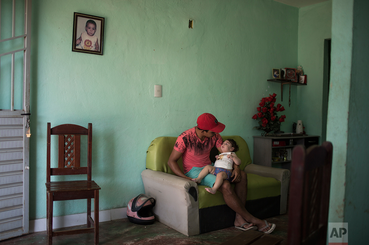 In this Sept. 26, 2016 photo, Dejailson Arruda holds his daughter Luiza, who was born with microcephaly when her mother was infected with the Zika virus, at their home in Santa Cruz do Capibaribe, Pernambuco state, Brazil. While more study is needed, swallowing difficulties, epileptic seizures and vision and hearing problems appear to be causing more severe problems in these infants than in patients born with small heads because of the other infections known to cause microcephaly, such as German measles and herpes. (AP Photo/Felipe Dana)