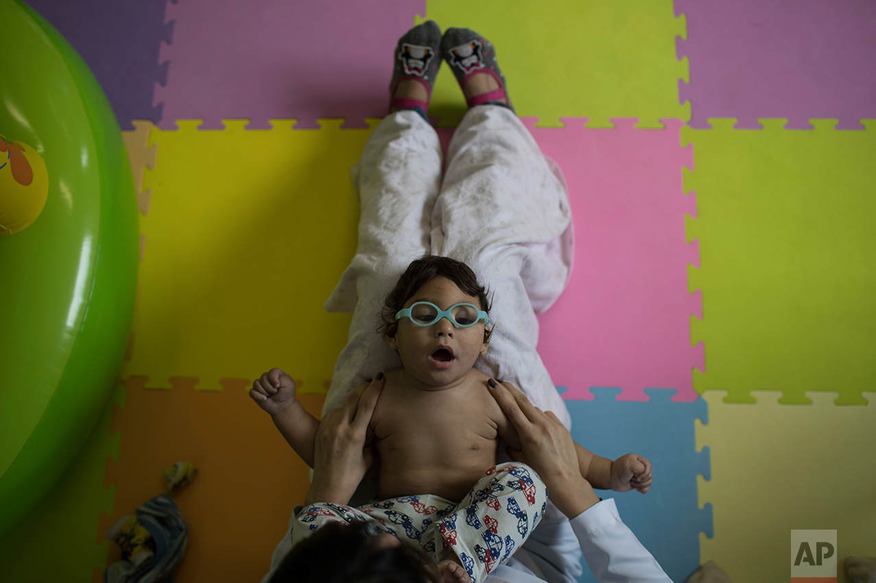 This Sept. 27, 2016 photo shows Lucas Matheus, who was born with microcephaly, during his physical therapy session at the UPAE hospital in Caruaru, Pernambuco state, Brazil. In Brazil, the government has reported 1,949 cases of microcephaly or other brain malformations in the last year. (AP Photo/Felipe Dana)