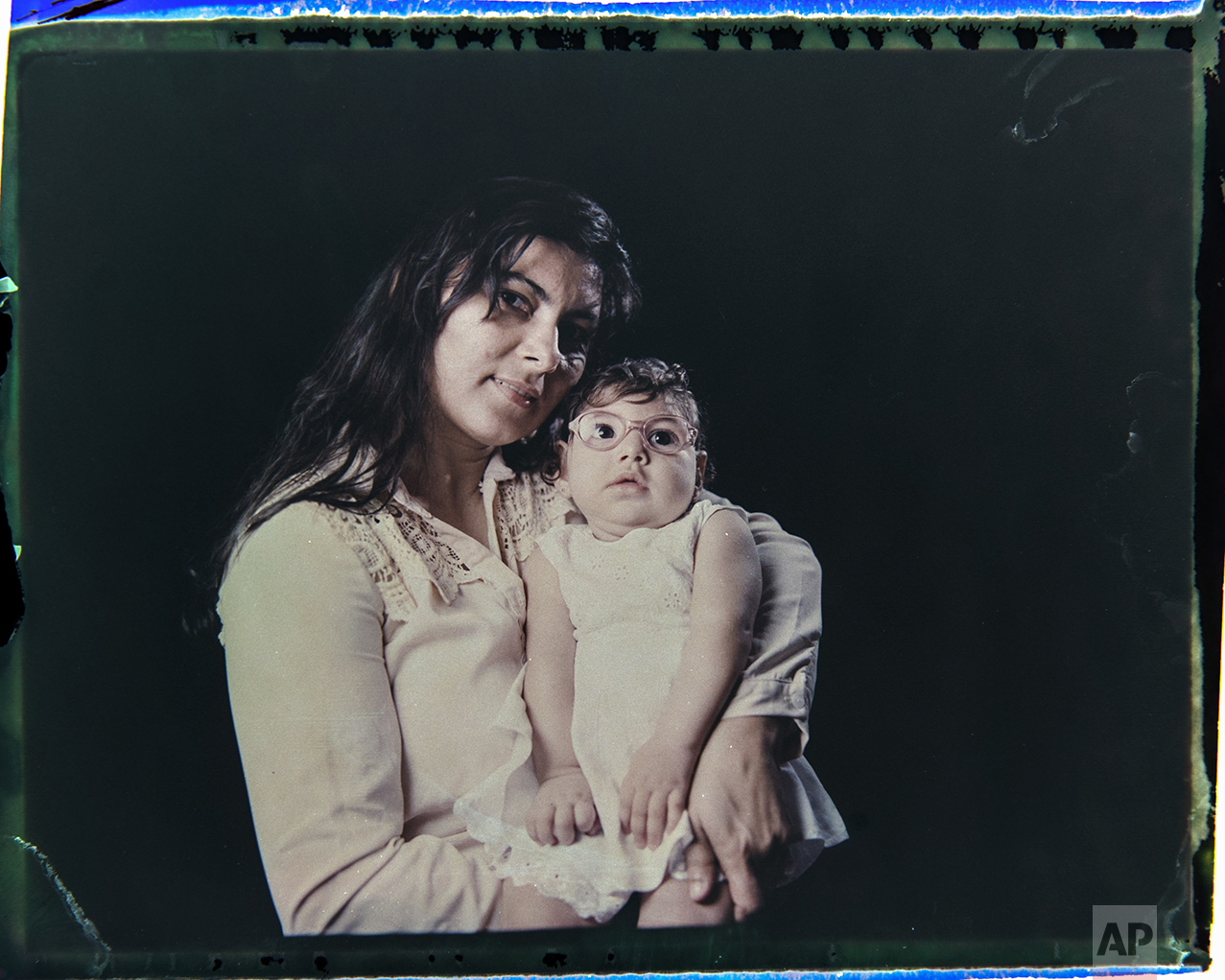 In this Sept. 29, 2016 photo made from a negative recovered from instant film, Jusikelly da Silva poses for a photo with her daughter Luhandra, who was born with microcephaly, one of many serious medical problems that can be caused by congenital Zika syndrome, in Recife, Pernambuco state, Brazil. Silva says she is desperate to get a brain scan for Luhandra, who was sitting up and eating solid foods before a seizure several months ago left her virtually motionless. (AP Photo/Felipe Dana)