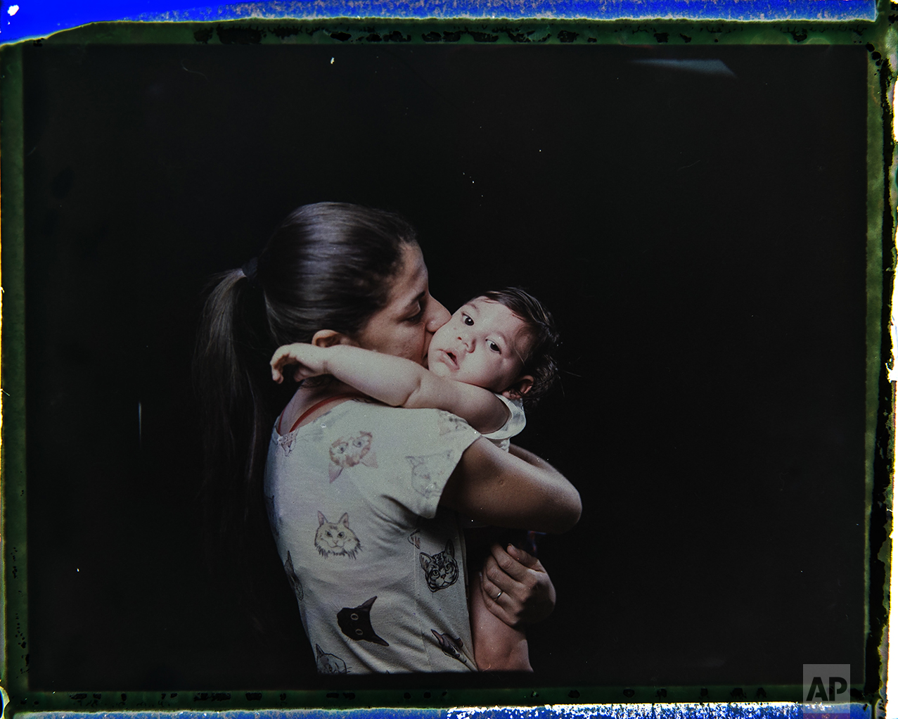 """In this Sept. 26, 2016 photo made from a negative recovered from instant film, Angelica Pereira kisses her daughter Luiza, who was born with microcephaly, one of many serious medical problems that can be caused by congenital Zika syndrome, during a portrait session in Santa Cruz do Capibaribe, Pernambuco state, Brazil. """"We are always chasing something. We have to drop everything else, all our chores, our homes,"""" said the 21-year-old. """"There are so many of us with children with special needs. (The government) is forgetting about that."""" (AP Photo/Felipe Dana)"""