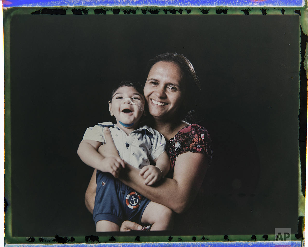 In this Sept. 29, 2016 photo made from a negative recovered from instant film, Rozilene Ferreira poses with her 1-year-old son, Arthur Conceicao, who was born with microcephaly, one of many serious medical problems that can be caused by congenital Zika syndrome, in Recife, Pernambuco state, Brazil. A year after a spike in the number of newborns with the defect known as microcephaly, Brazilian doctors and researchers have seen many of the babies develop swallowing difficulties, epileptic seizures and vision and hearing problems. (AP Photo/Felipe Dana)