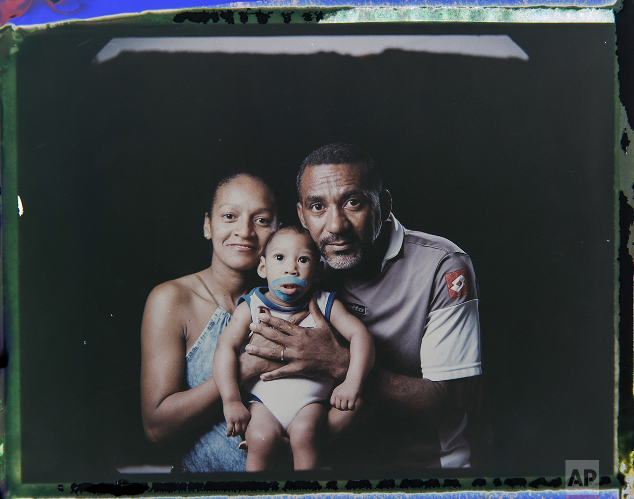 In this Sept. 29, 2016 photo made from a negative recovered from instant film, Diana Felix and Carlos Alberto Dias, pose with their son, Ezequiel, who was born with microcephaly, one of many serious medical problems that can be caused by congenital Zika syndrome, in Recife, Pernambuco state, Brazil. Dias stopped working to help Felix care for their four children. Sometimes he accompanies her to Ezequiel's therapy sessions and medical appointments, which can be as often as five times a week. (AP Photo/Felipe Dana)