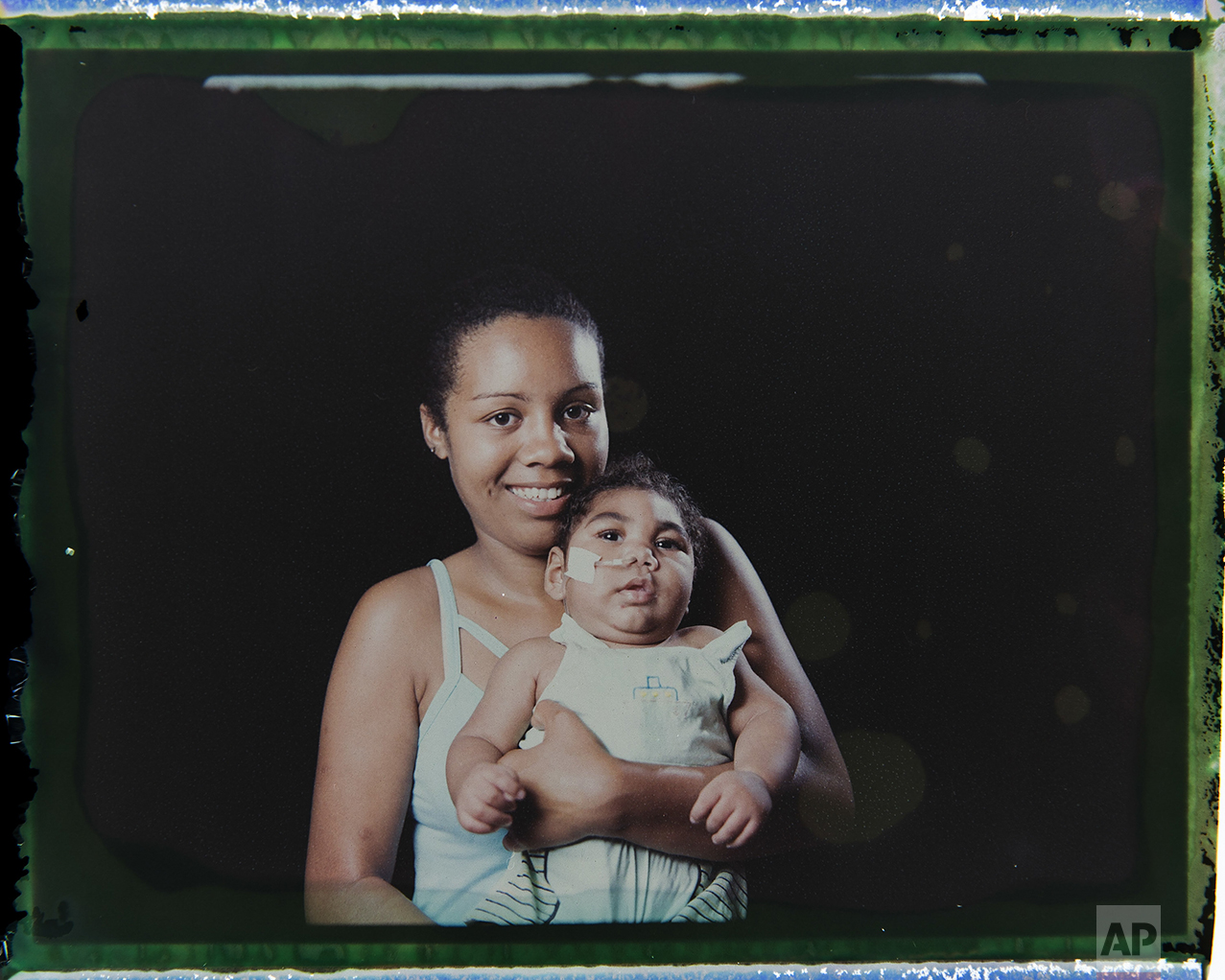 In this Sept. 29, 2016 photo made from a negative recovered from instant film, Tatiane do Nascimento holds her son Willamis Silva, who was born with microcephaly, one of many serious medical problems that can be caused by congenital Zika syndrome, as they pose for a photo in Recife, Pernambuco state, Brazil. Willamis was having swallowing problems and not gaining weight so a feeding tube was introduced, which in less than a month he pulled out a couple of times. Barbosa, who has two other children, says she used to take Williamis daily to the hospital or physical therapy, but now they are going two or three times a week. (AP Photo/Felipe Dana)