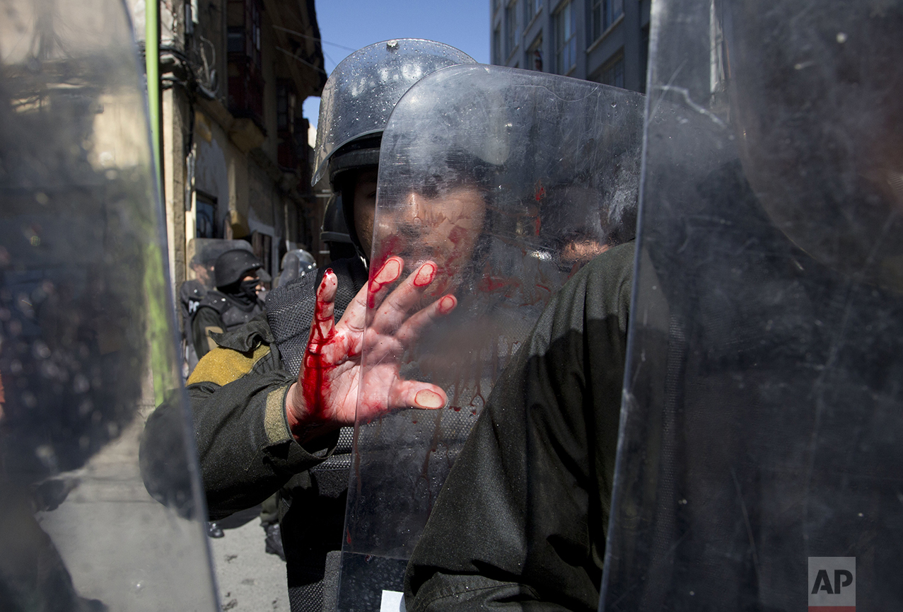 A police officer's hand is bloodied as he blocks protesters with disabilities from reaching Plaza Murillo, as they try to march to the National Palace where Bolivia's President Evo Morales has his offices, to demand an increase in government disability compensation in La Paz, Bolivia, on May 25, 2016. Protesters were demanding an increase in state benefits for those with disabilities, to 500 Bolivianos, or about $73 dollars, per month. (AP Photo/Juan Karita)