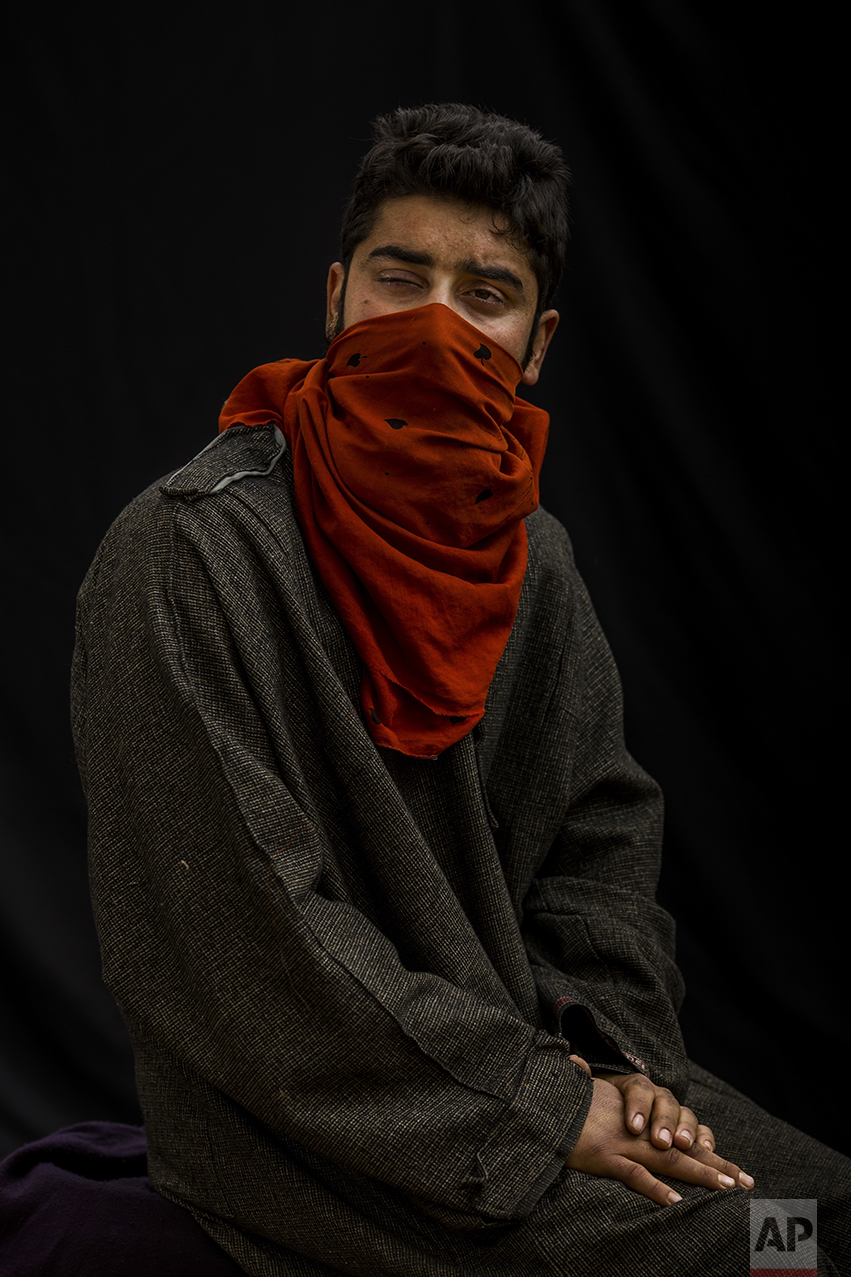 "In this Nov. 30, 2016 photo, Tanveer poses for a portrait with his face partially covered, near Baramulla, Indian-controlled Kashmir. Tanveer lost eyesight on his right eye because metal pellet injuries. ""I was an earning hand of my family. I feel like a living dead."" he says. Health officials say that in the past five months more than 6,000 people, mostly young men, have been injured by shotgun pellets, including hundreds blinded in one or both eyes.  (AP Photo/Bernat Armangue)"