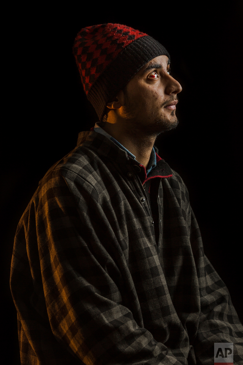 In this Dec. 2, 2016 photo, Javed Ah-Dar poses for a portrait in Rahmoo, district of Pulwama, Indian-controlled Kashmir. The most recent protests erupted in early July after Indian troops killed Burhan Wani, a young and charismatic militant commander and sparked off more than five months of angry street protests in the Kashmir valley. Javed was injured in both eyes by metal pellets when Indian forces raided the village. (AP Photo/Bernat Armangue)