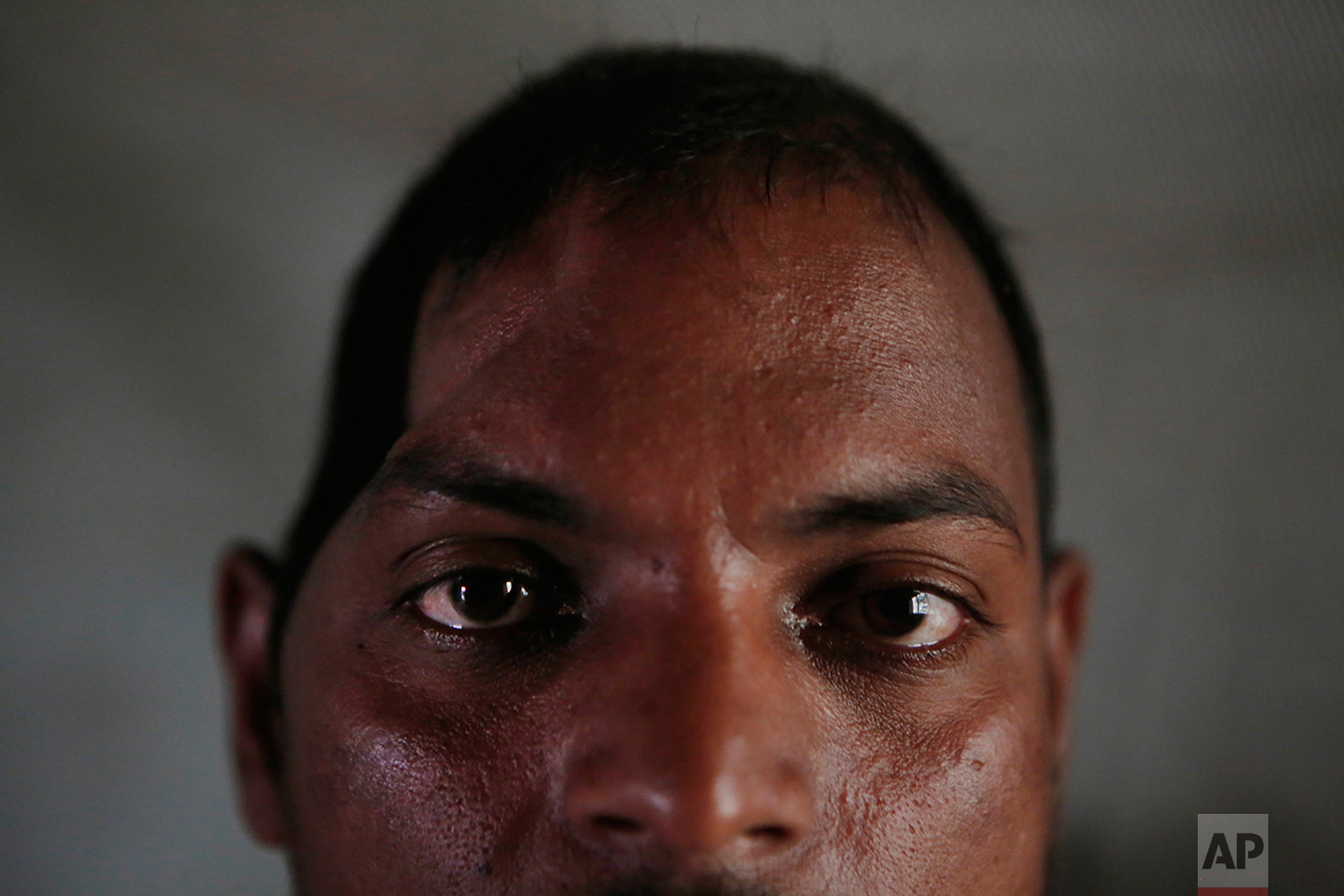 In this Nov. 24, 2016 photo, Salit Mandal, 28, sits on his bed at his home in Parikauli Village, Saptari district, a region where many men have left to work abroad as unskilled laborers, Nepal. Mandal, who rolled off a third-level bunk in Malaysia and smashed his skull, is in debt and partially paralyzed, and lives with his parents. His family had pinned their hopes on him after he returned from an earlier stint in Qatar with enough money to build a five-bedroom house. Now his mom takes a visitor aside and says the situation is horrible, Salit can't squat by himself over the pit toilet, she says, and she has to clean him up afterward. (AP Photo/Niranjan Shrestha)