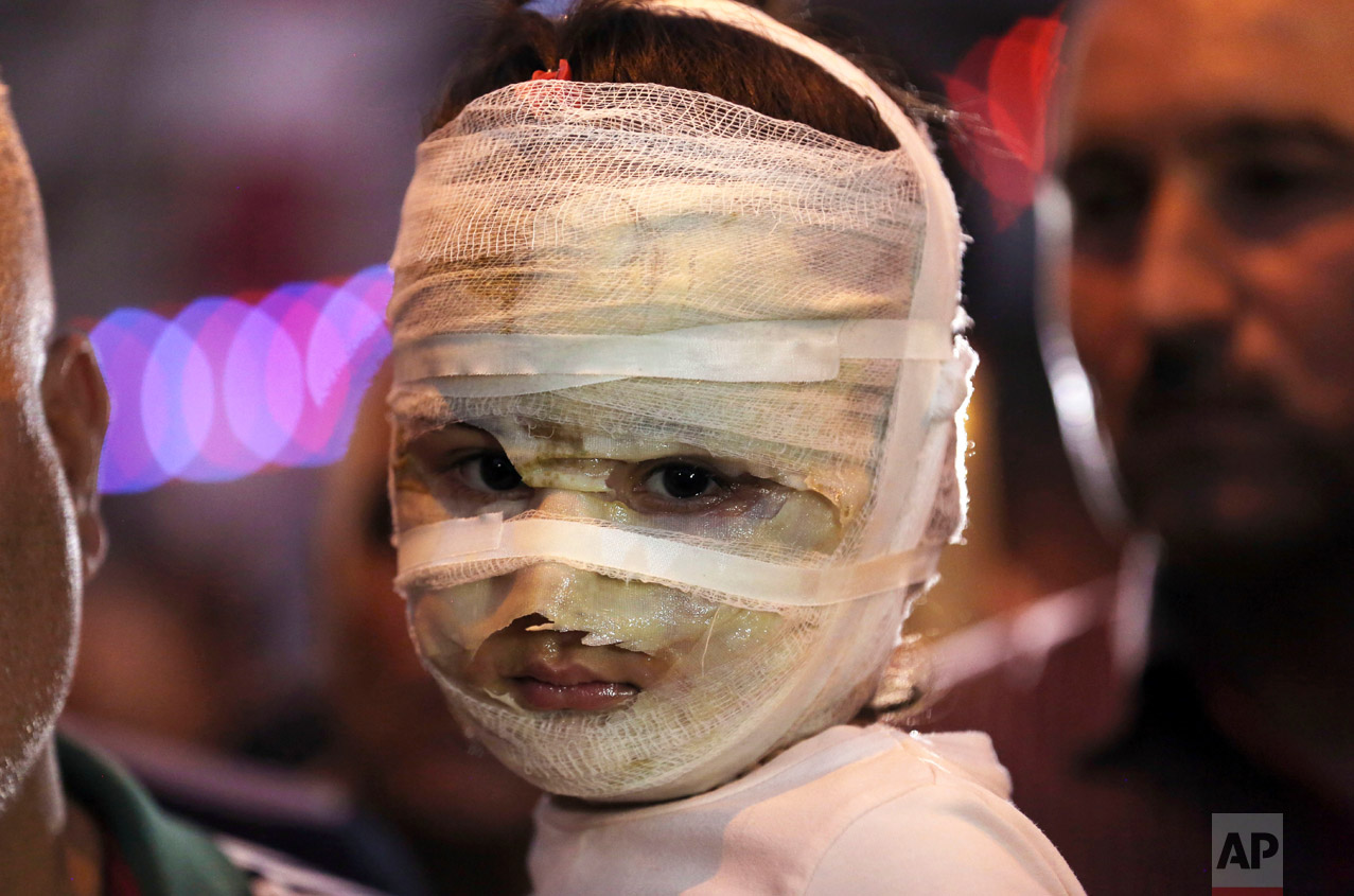 In this Saturday, July 9, 2016 photo, Asal Ahmed, 4, is carried by her father at the scene of a massive suicide truck bomb attack in Karada, Iraq. Asal and her mother were badly burned as they shopped for the Muslim holiday of Eid al-Fitr. (AP Photo/Hadi Mizban)
