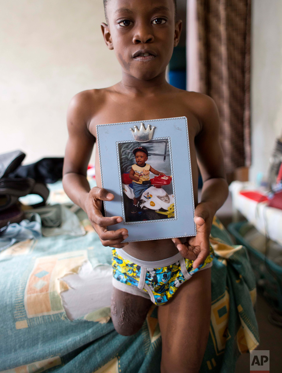 In this Jan. 8, 2017 photo, Judeley Hans Debel stands on his one leg, holding a portrait of himself when he was 1-year-old, at his home in Petion-Ville, Haiti. When Judeley was 2 ½, he was one of thousands of people to undergo amputations after the powerful earthquake that devastated Haiti's capital seven years ago. (AP Photo/Dieu Nalio Chery)