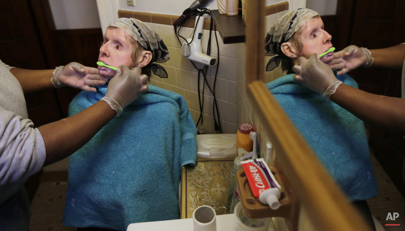In this Friday, Feb. 20, 2015 photograph, a care worker brushes Charla Nash's teeth, which were provided by an organ donor along with her face, at her apartment in Boston.   (AP Photo/Charles Krupa)