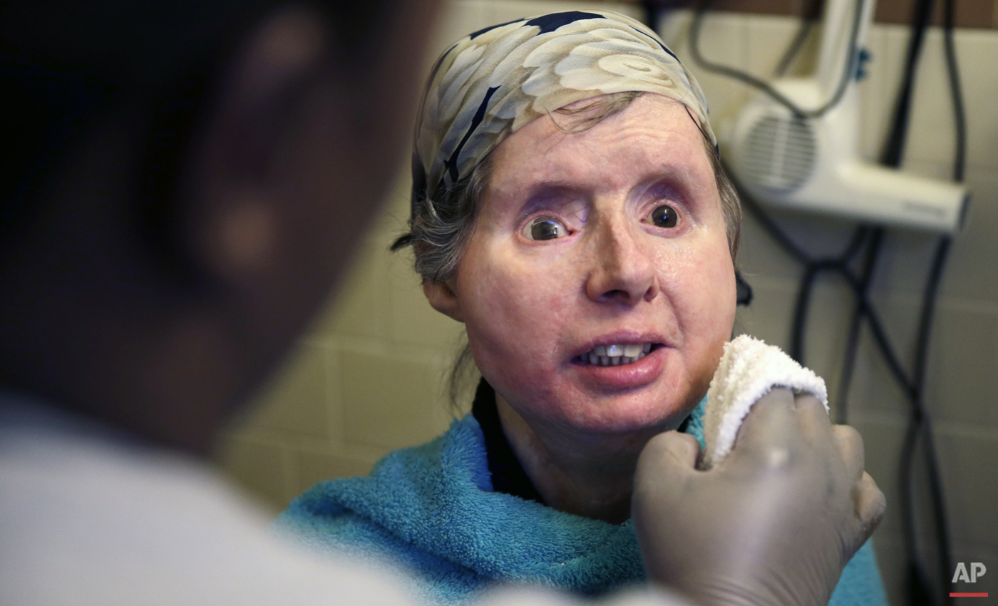 In this Friday, Feb. 20, 2015 photograph, Charla Nash smiles as her care worker washes her face at her apartment in Boston.   (AP Photo/Charles Krupa)