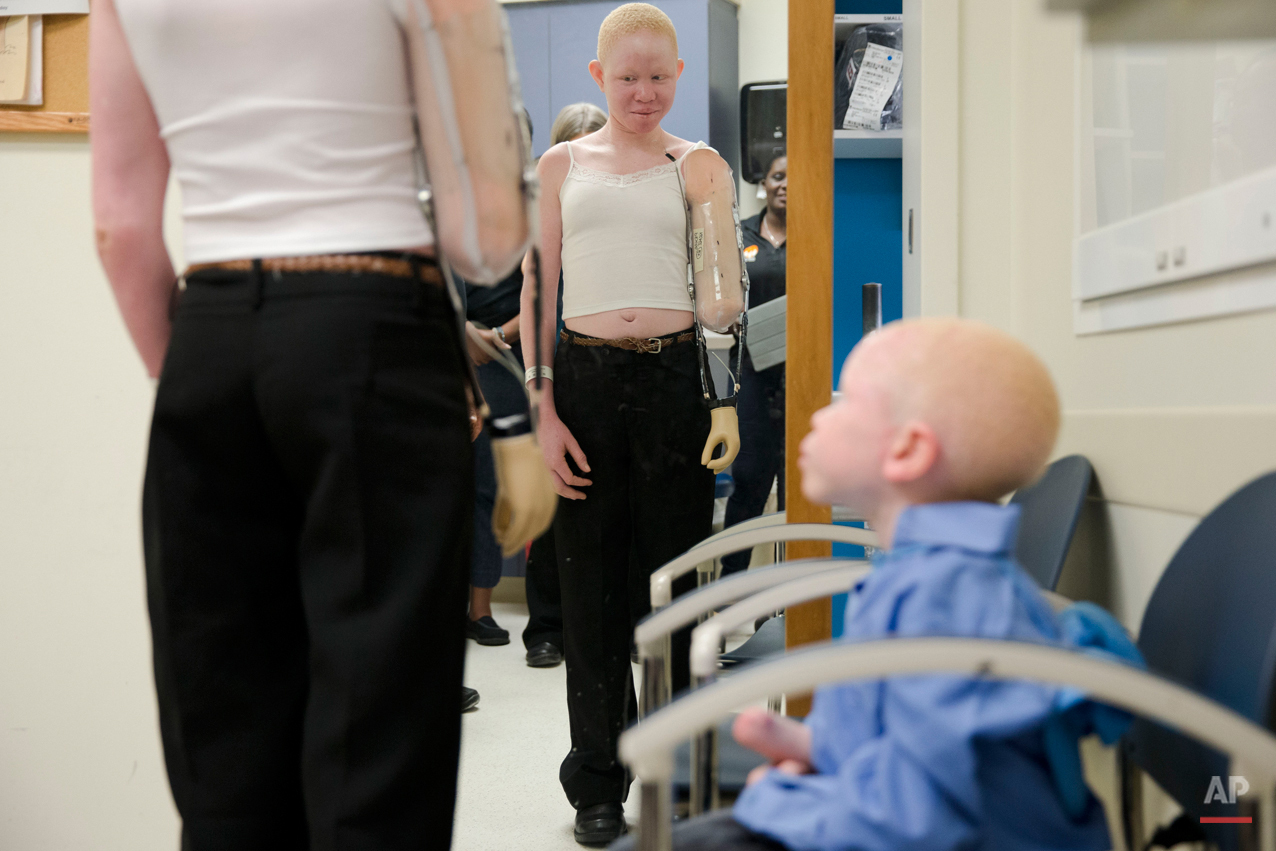 Pendo Noni, 15, and Baraka Lusambo, 5, both of Tanzania take part in a fitting for prosthetic limbs, on Thursday, July 23, 2015, at Shriners Hospital for Children in Philadelphia. Noni, Lusambo, and three other children also with the hereditary condition of albinism are in the U.S. to receive free surgery and prostheses at the hospital. The children were attacked and dismembered in the belief that their body parts will bring wealth. (AP Photo/Matt Rourke)