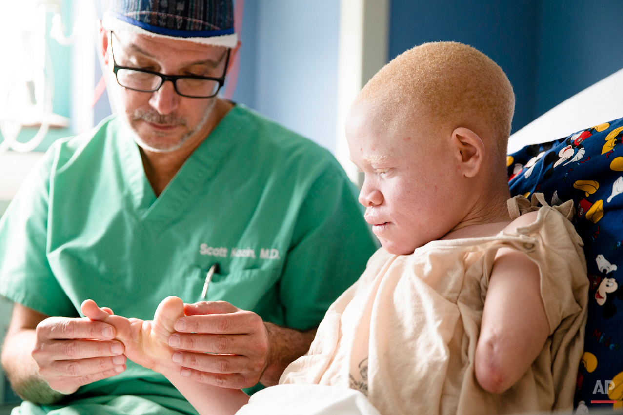 Dr. Scott H. Kozin examines 13-year-old Emmanuel Rutema, of Tanzania, who has the hereditary condition of albinism, before his surgery at the Shriners Hospital for Children in Philadelphia on Tuesday, June 30, 2015. People with the genetic condition, characterized by a lack of pigment, are often referred to in Tanzania as ghosts, or zero zero, which in Swahili signifies someone who is less than human. Witch doctors often lead brutal attacks to use albino body parts in potions they claim bring riches. (AP Photo/Matt Rourke)