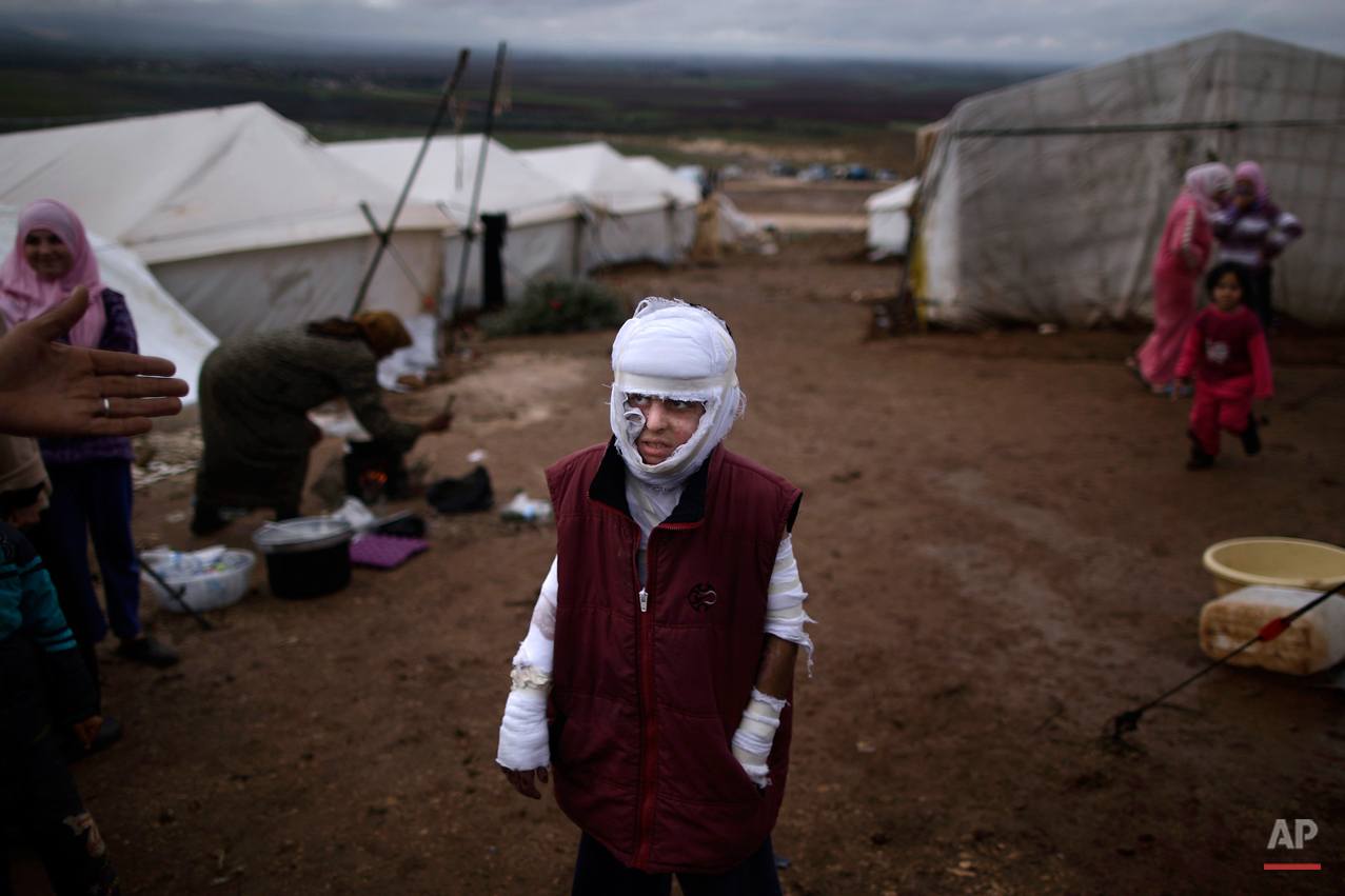 Abdullah Ahmed, 10, who suffered burns in a Syrian government airstrike and fled his home with his family, stands outside their tent at a camp for displaced Syrians in the village of Atmeh, Syria, Tuesday, Dec. 11, 2012. This tent camp sheltering some of the hundreds of thousands of Syrians uprooted by the country's brutal civil war has lost the race against winter: the ground under white tents is soaked in mud, rain water seeps into thin mattresses and volunteer doctors routinely run out of medicine for coughing, runny-nosed children. (AP Photo/Muhammed Muheisen)