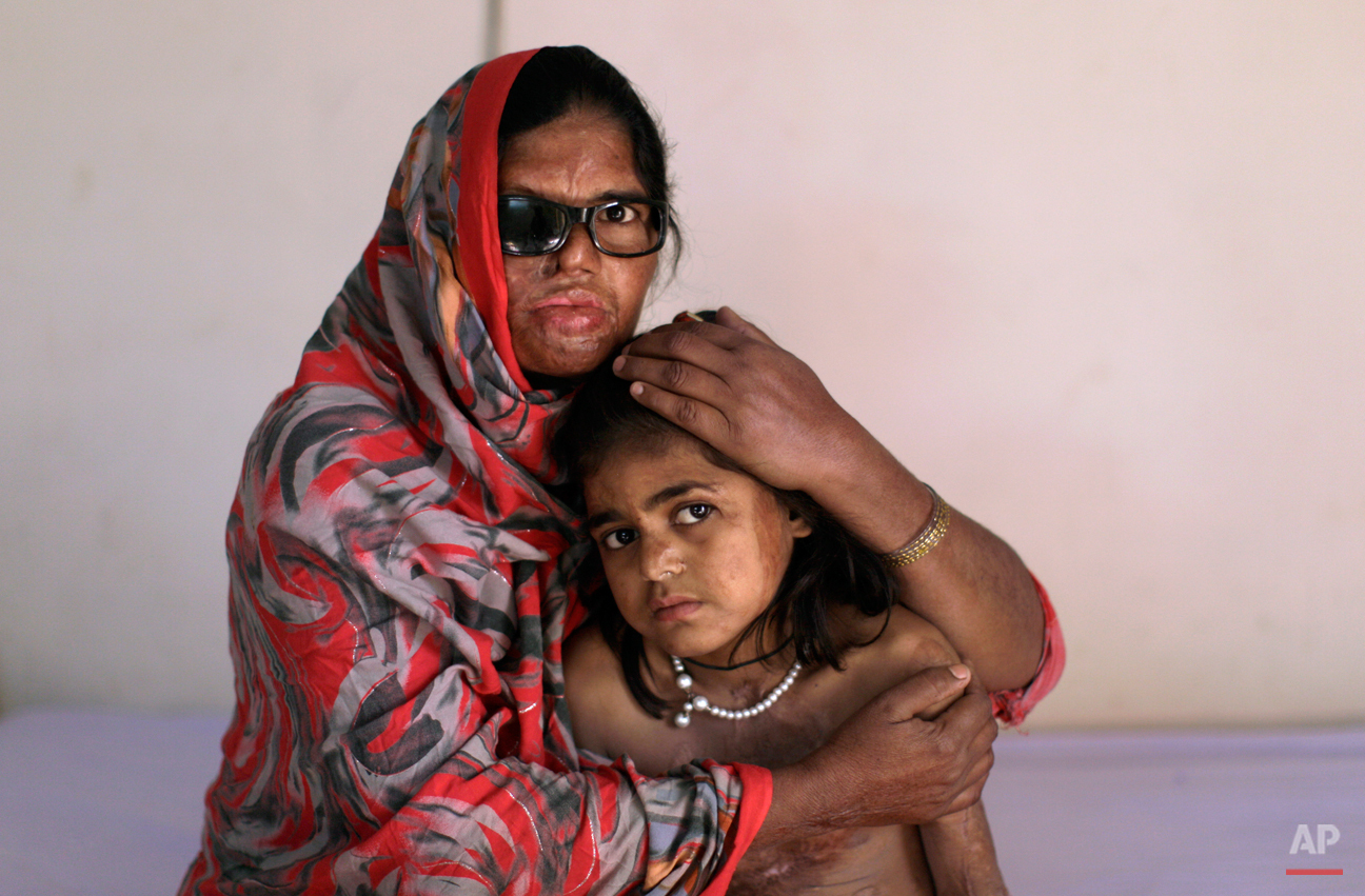 Pakistani acid attack survivor, Azim Mai, 35, holds her daughter Shaziya, 8, while sitting on a bed waiting to have a massage session for their wounds, at the Acid Survivors Foundation (ASF) in Islamabad, Pakistan, Tuesday, Dec. 13, 2011. Azim Mai's husband allegedly threw acid in her face and their daughter Shaziya last year after she refused to sell their two boys to a man in Dubai to use as camel racers. Rights activists Tuesday praised the laws, which stiffened the punishment for acid attacks and also criminalized practices such as marrying off young girls to settle tribal disputes and preventing women from inheriting property. The Senate provided final approval for two bills containing the new laws Monday. (AP Photo/Muhammed Muheisen)