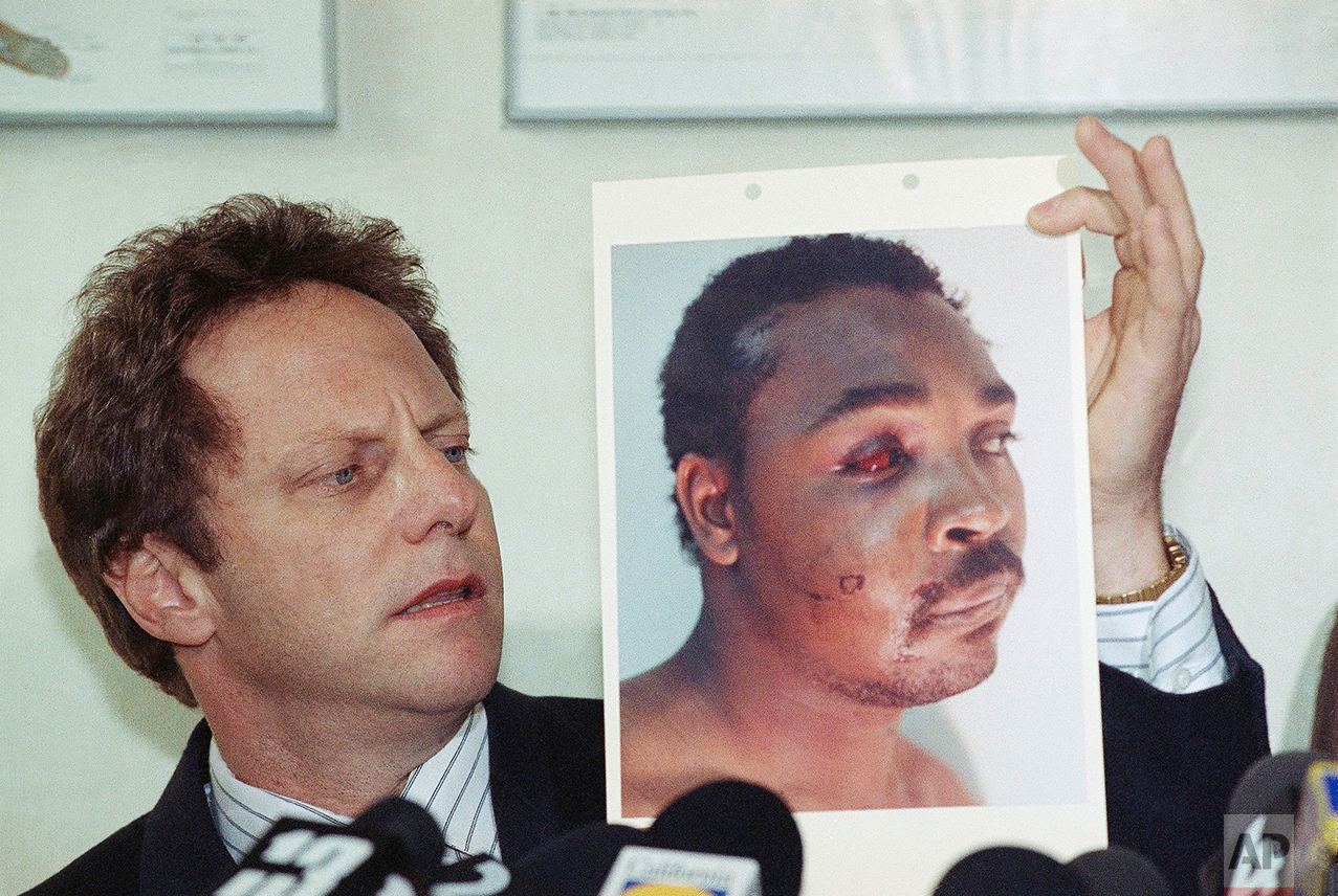 Steven Lerman, attorney for Rodney King, displays a photo of his client during a press conference at his office in Beverly Hills, California, Friday, March 8, 1991. King's doctor outlined the extent of man's injuries for reporters during the meeting. (AP Photo/Nick Ut)