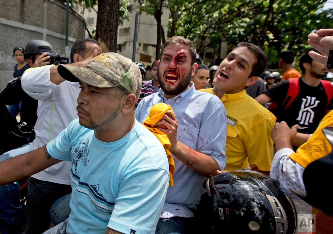 Opposition lawmaker Juan Requesens, center, is escorted by his colleague Jose Manuel Olivares, right, after being injured by alleged pro government supporters as they protest outside of the Ombudsman's offices in Caracas, Venezuela, Monday, April 3, 2017. A group of opposition lawmakers was attacked by suspected followers of the Government during a demonstration in the center of the capital that left at least one injured Congressman. (AP Photo/Fernando Llano)