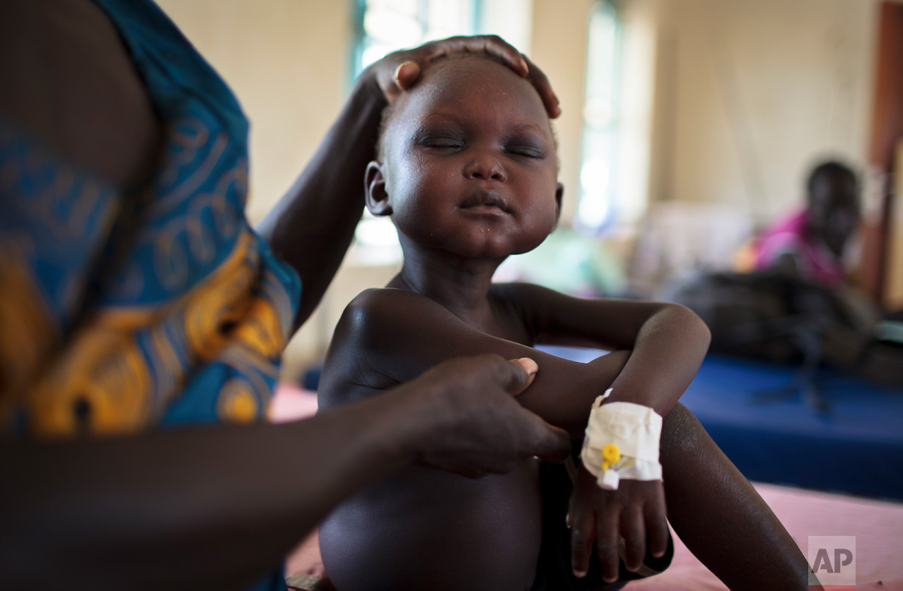 In this photo taken Wednesday, May 10, 2017, Bambina Adyak holds her malnourished son Josep Atak, 4, at the State Hospital in Torit, in southeastern South Sudan.(AP Photo)