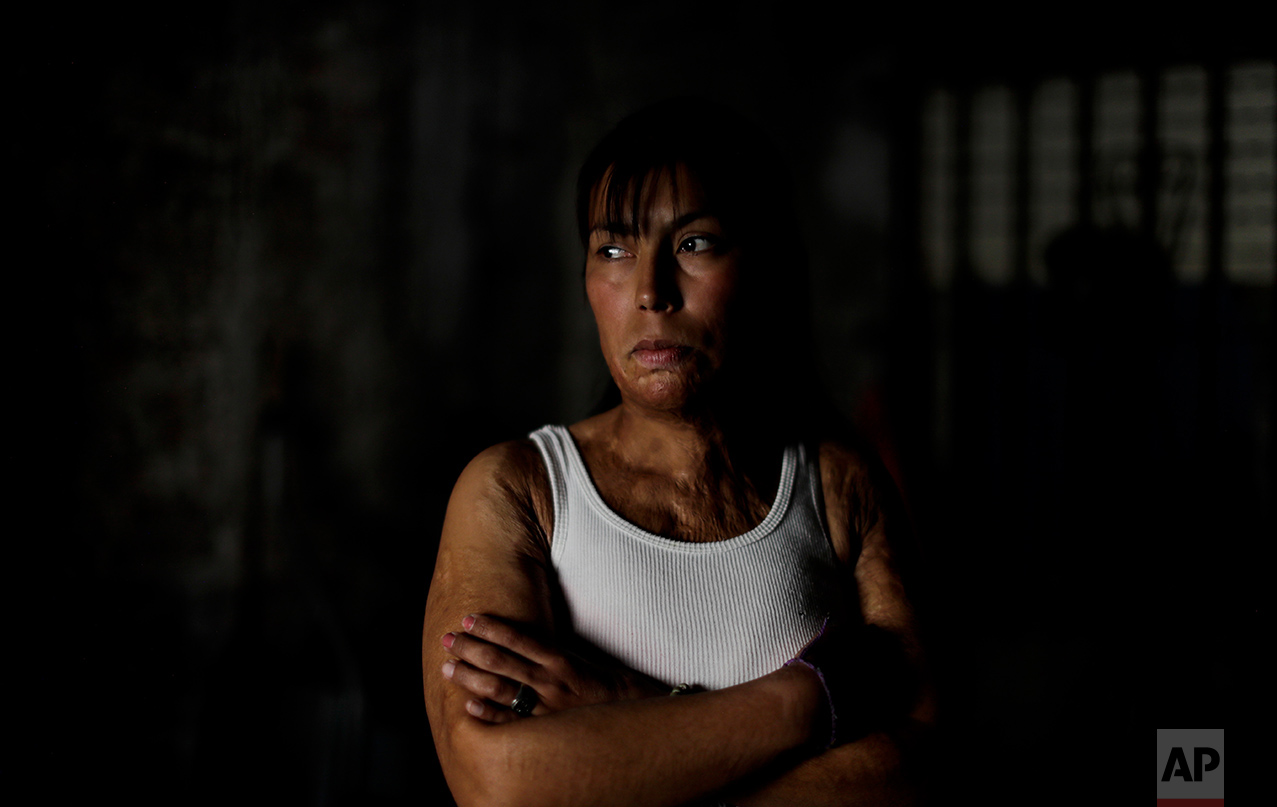 In this May 22, 2017 photo, Maira Maidana poses for a portrait in Buenos Aires, Argentina. Maira Maidana was doused in alcohol and burned by her partner in 2011. Fifty-nine surgeries later, Maidana has finally found the courage to tell the truth about what happened to her that awful night. (AP Photo/Natacha Pisarenko)
