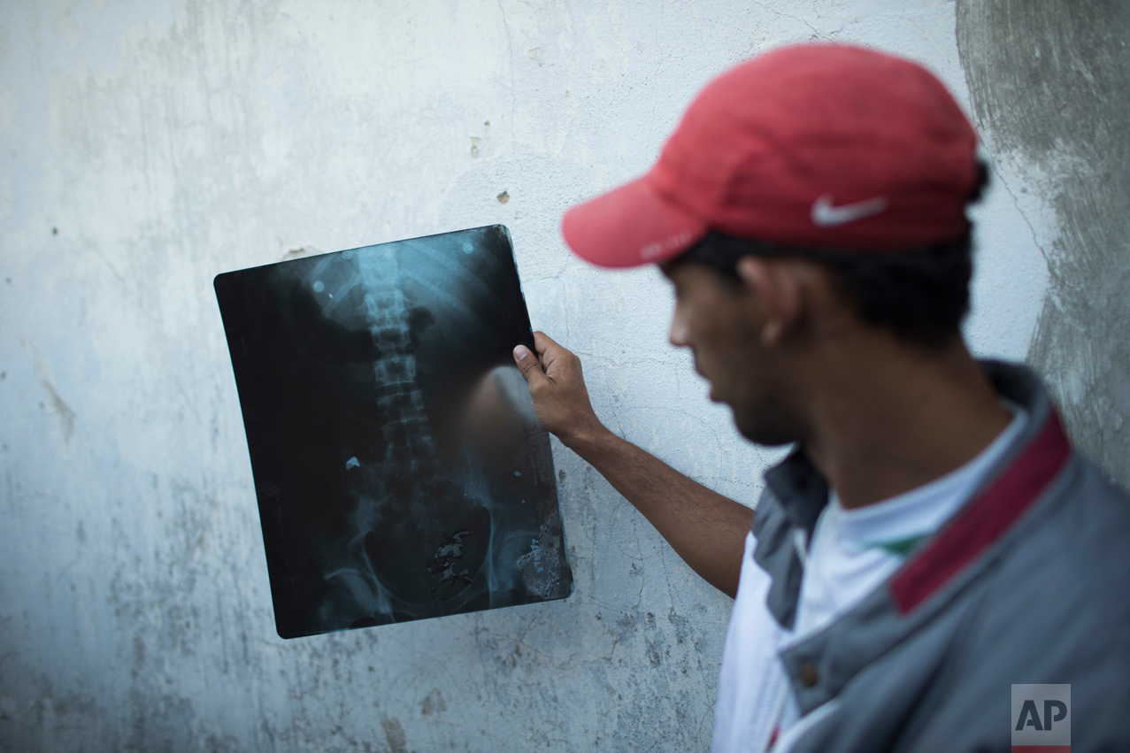 In this June 10, 2017 photo, Alexandre Henrique da Cruz Correia holds an X-ray showing a bullet lodged in his left hip in the City of God slum of Rio de Janeiro, Brazil, after he was recently shot while walking home from his grandmother's. (AP Photo/Leo Correa)