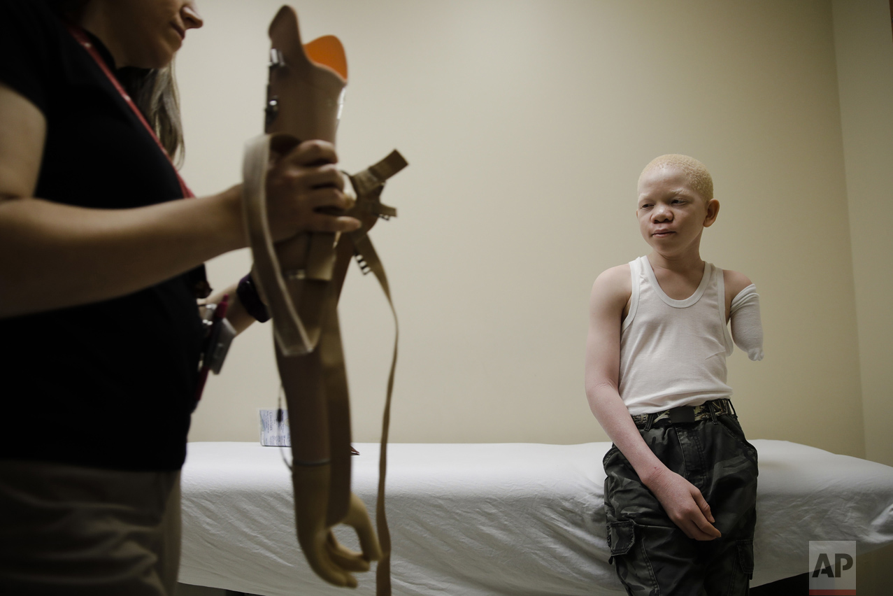 Albino Children Prosthetics
