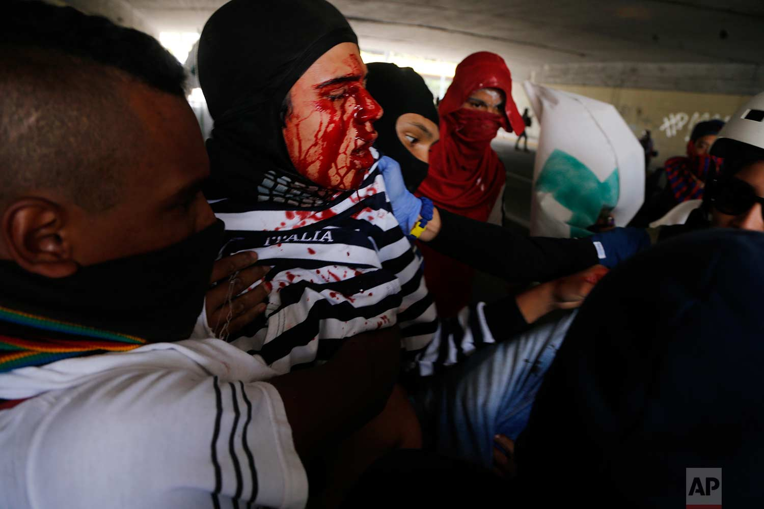 An injured anti-government protester is removed from clashes with security forces, during a call by the opposition to block roads for 10 hours in Caracas, Venezuela, Monday, July 10, 2017. (AP Photo/Ariana Cubillos)