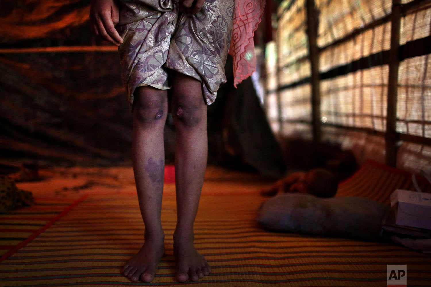 In this Sunday, Nov. 19, 2017, photo, R, 13, shows off the scars on her knees and right shin from injuries obtained when members of Myanmar's armed forces dragged her out of her house before gang raping her, during an interview with The Associated Press in Kutupalong refugee camp in Bangladesh. (AP Photo/Wong Maye-E)