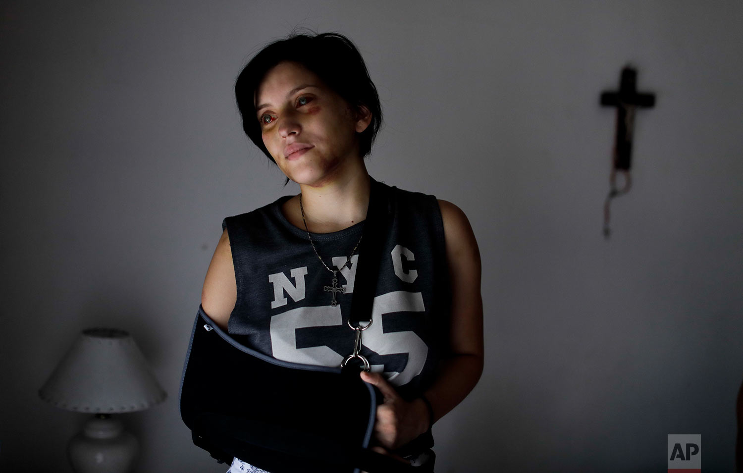 Belen Torres poses for a portrait in Buenos Aires, Argentina, Wednesday, Feb. 8, 2017. Torres was beaten by her boss, just a few days after starting her first job in the capital doing administrative paperwork for an anesthesiologist, to help her family pay the bills. The doctor asked her to get high and tried to have sex with her. After he beat her, she was able to escape and run outside, where an unknown man called 911. (AP Photo/Natacha Pisarenko)